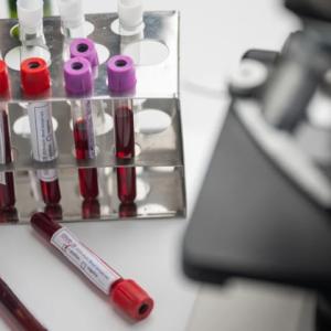 43 нови случаи на коронавирус в Русе